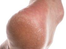 在脚跟的干性皮肤 免版税图库摄影