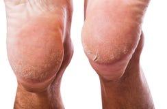 在脚跟的皮肤 图库摄影
