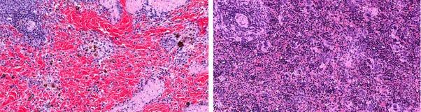 在脾脏的色调微红的白血病 库存照片