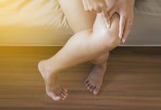 在腿妇女的红旗敏感皮肤,因为蚊咬 免版税库存照片