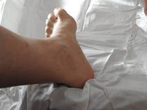 在腿的静脉曲张 免版税库存图片