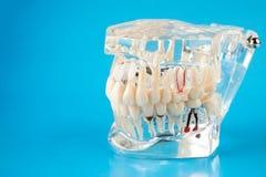 在蓝色背景的牙齿下颌模型 免版税库存图片
