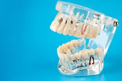 在蓝色背景的牙齿下颌模型 免版税库存照片