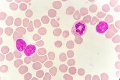 在血液污迹的白细胞 免版税图库摄影