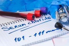 在血清的在基本的新陈代谢或biochemic测试实验室试管的氯化物或血液有血液污迹的、听诊器或者影片和g 免版税库存照片