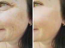 在补白防皱撤除前后的面孔耐心皱痕 免版税库存照片