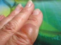 在被烧的手指的水泡 免版税库存图片