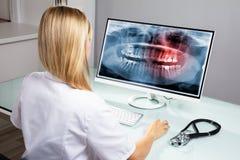 在计算机上的牙医审查的牙X-射线 免版税库存照片