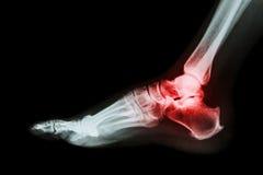 在距小腿关节(痛风,风湿性关节炎)的关节炎 库存照片