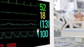 在重症监护病房的重要标志显示器 影视素材