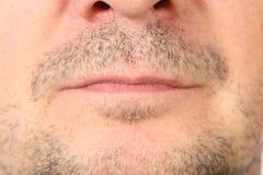 在面孔的发茬。 免版税库存照片