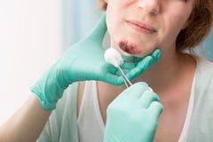 在面孔的护士用药治疗的创伤 免版税库存图片