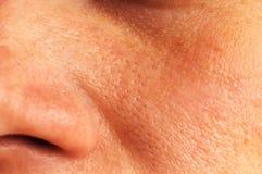 在面孔的油腻的皮肤 库存照片