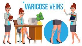 在高跟鞋鞋子的女性腿有静脉曲张传染媒介的 被隔绝的动画片例证 库存例证