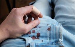 在织品的事故 免版税库存照片