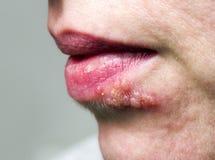 在嘴唇的疱疹 库存图片