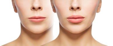在嘴唇补白前后的妇女 库存图片