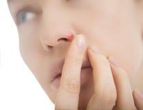 在鼻子的疱疹-有疱疹的少妇在她的鼻子 免版税库存照片