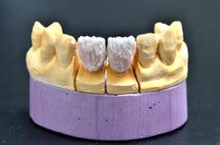 在水泥支持的牙牙插入物 免版税库存图片