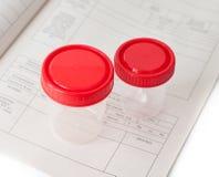 二个steril医疗容器 免版税库存图片
