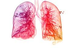 在3d图象,肺3d图象之下的胸部X光 库存图片