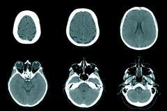 在CT扫描的正常头 免版税库存图片