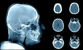 在CT扫描的正常头 库存图片