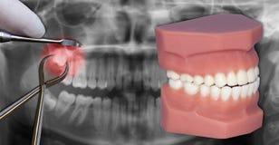 在X-射线的手术提取 免版税库存照片