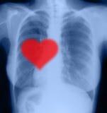在X-射线的红色心脏 库存图片