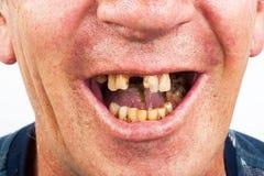 坏牙,吸烟者 免版税库存图片