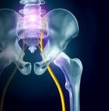坐骨神经痛痛苦概念 库存例证