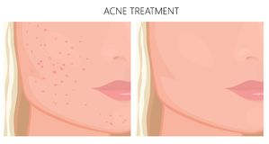 塑料surgery_Acne治疗面颊和下巴 向量例证
