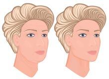 塑料surgery_Facial回复 库存例证