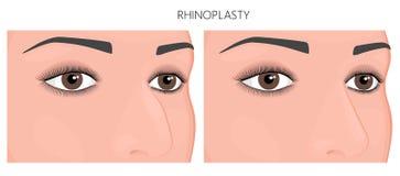 塑料surgery_Nose工作或鼻整形术 图库摄影