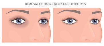 塑料surgery_Removal在眼睛下的黑暗的圈子 皇族释放例证