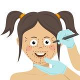 外科医生在女性面孔的图画标记 概念查出的整容手术白色 皇族释放例证