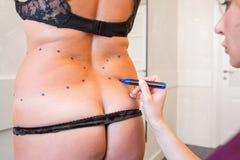 外科医生妇女为皮下脂肪切除术手术做准备 免版税库存图片