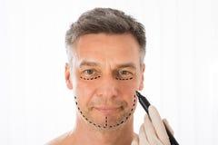 外科医生图画在人面孔的更正线 库存图片