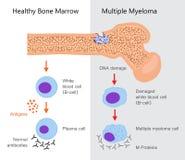 多发性骨髓瘤图 向量例证