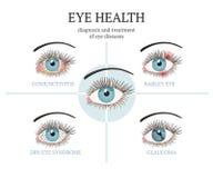 多数共同的眼睛问题-结膜炎,青光眼,干眼病综合症状,大麦注视 向量例证