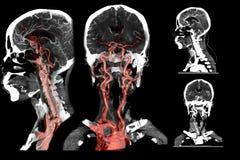 多看法第2和3D CT血管学的翻译图象 向量例证