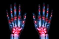 多联合关节炎两只手(痛风,类风湿病)在黑背景 库存图片