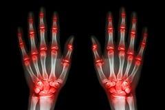 多联合关节炎两只手(痛风,类风湿病)在黑背景 免版税库存图片