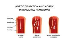 大动脉解剖和大动脉城内血肿 向量例证