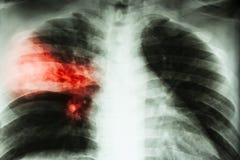 大叶性肺炎 在右中间耳垂的影片胸部X光展示齿龈音滤渗由于结核病传染 库存照片