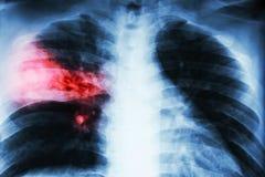 大叶性肺炎 在右中间耳垂的影片胸部X光展示齿龈音滤渗由于结核病传染 免版税库存照片