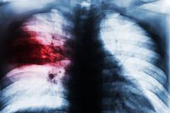 大叶性肺炎 库存照片