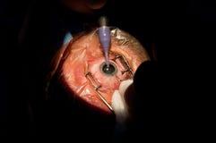 大瀑布眼科手术 库存照片