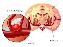 大脑的动脉瘤 免版税库存照片