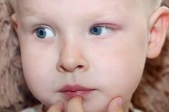 大麦,在孩子的hordeolum 在男孩的眼睛的化脓囊 免版税图库摄影